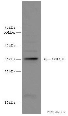 Western blot - Anti-SULT2B1 antibody (ab82865)