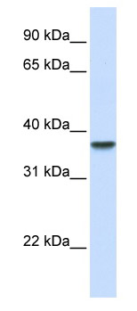 Western blot - Anti-DDAH1 antibody (ab82908)