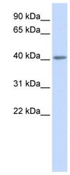 Western blot - Anti-5HT5A receptor antibody (ab82924)