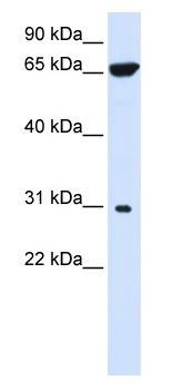 Western blot - Anti-PTPLAD2 antibody (ab82949)