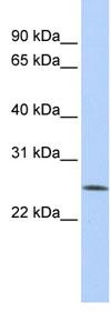 Western blot - Anti-FBXO22 antibody (ab82974)