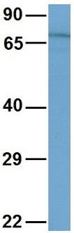 Western blot - Anti-ESRP2 antibody (ab83034)