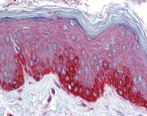 Immunohistochemistry (Formalin/PFA-fixed paraffin-embedded sections)-Anti-Frizzled 4 antibody(ab83042)