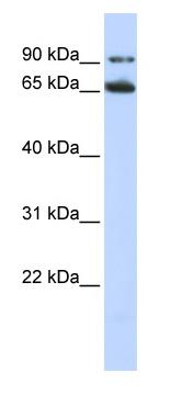 Western blot - Anti-Frizzled 10 antibody (ab83044)