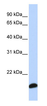 Western blot - Anti-Peroxiredoxin 5 antibody (ab83045)