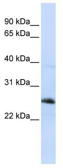 Western blot - Anti-Reticulon 1 antibody (ab83049)