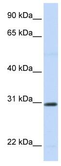 Western blot - Anti-Stanniocalcin 1 antibody (ab83065)