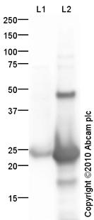 Western blot - Anti-Cardiotrophin 1 antibody (ab83176)