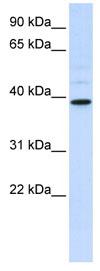 Western blot - Anti-AMCase antibody (ab83187)
