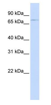 Western blot - Anti-ABCB8 antibody (ab83194)