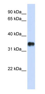 Western blot - Anti-KCTD7 antibody (ab83237)