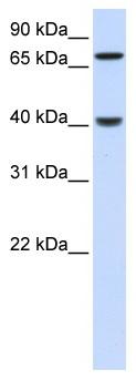 Western blot - Anti-ALP antibody (ab83259)
