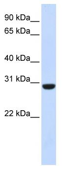 Western blot - Anti-Calcipressin 1 antibody (ab83271)