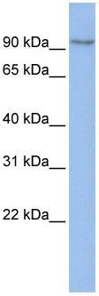 Western blot - Anti-TMEM63B antibody (ab83274)