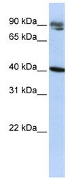 Western blot - Anti-KLHDC8A antibody (ab83277)