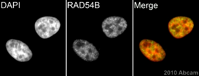 Immunocytochemistry/ Immunofluorescence - Anti-RAD54B antibody (ab83311)