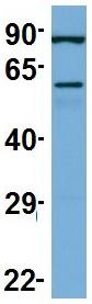 Western blot - Anti-Twinkle antibody (ab83329)