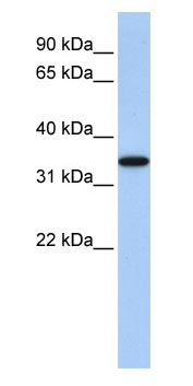 Western blot - Anti-ART4 antibody (ab83342)