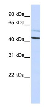 Western blot - Anti-Proteasome 19S S5A antibody (ab83344)