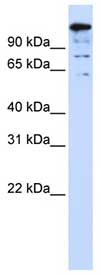 Western blot - Anti-BACH2 antibody (ab83364)