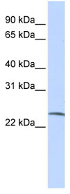 Western blot - Anti-SSX6 antibody (ab83385)