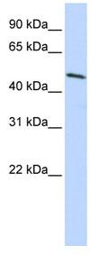 Western blot - Anti-Hoxb3 antibody (ab83404)