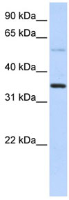 Western blot - Anti-ANKRD9 antibody (ab83405)