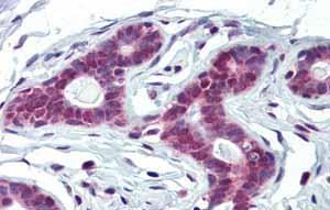 Immunohistochemistry (Formalin/PFA-fixed paraffin-embedded sections) - Anti-FUBP1 antibody (ab83453)