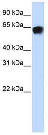 Western blot - Anti-Human Serum Albumin antibody (ab83465)