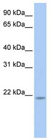 Western blot - Anti-RNF5 antibody (ab83466)