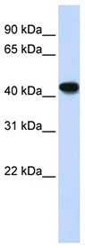 Western blot - Anti-ADH1B antibody (ab83475)