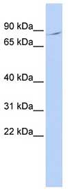Western blot - Anti-BRD3 antibody (ab83478)
