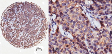 Immunohistochemistry (Formalin/PFA-fixed paraffin-embedded sections) - Anti-NG2 antibody (ab83508)