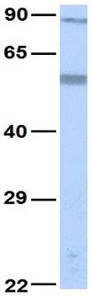 Western blot - Anti-KCNC3 antibody (ab83556)
