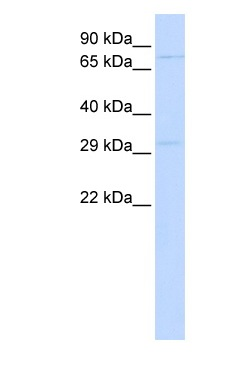 Western blot - Anti-PHOX2A antibody (ab83563)