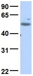 Western blot - Anti-C18orf25 antibody (ab83567)