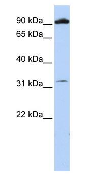 Western blot - Anti-Metabotropic Glutamate Receptor 6 antibody (ab83576)