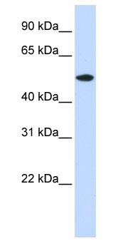 Western blot - Anti-RASGEF1A antibody (ab83656)