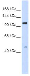 Western blot - Anti-TRPC4 antibody (ab83689)