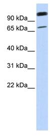 Western blot - Anti-LST-3TM12 antibody (ab83691)