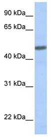 Western blot - Anti-CRLR antibody (ab83697)