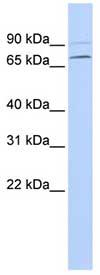 Western blot - Anti-YTHDF3 antibody (ab83716)