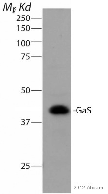 Western blot - Anti-G protein alpha S antibody (ab83735)