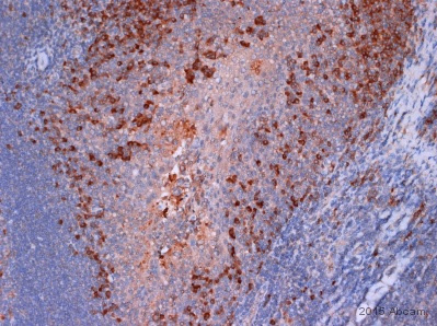 Immunohistochemistry (Formalin/PFA-fixed paraffin-embedded sections) - Anti-HGF antibody (ab83760)