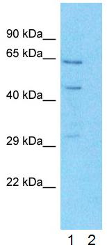 Western blot - Anti-FATP2 antibody (ab83763)