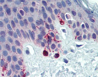 Immunohistochemistry (Formalin/PFA-fixed paraffin-embedded sections) - Anti-TRP1 antibody (ab83774)