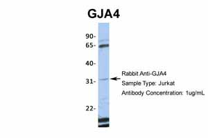 Western blot - Anti-Connexin 37 / GJA4 antibody (ab83788)