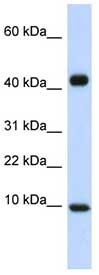 Western blot - Anti-MCP2 antibody (ab83803)