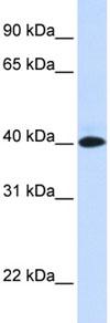 Western blot - Anti-VSIG8 antibody (ab83852)