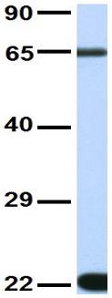 Western blot - Anti-Monoamine Oxidase B antibody (ab83854)